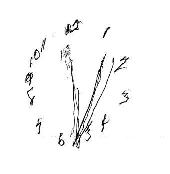 Dementia_Clock