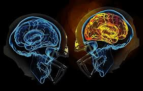 Head to head collisions can result in changes in brain structure